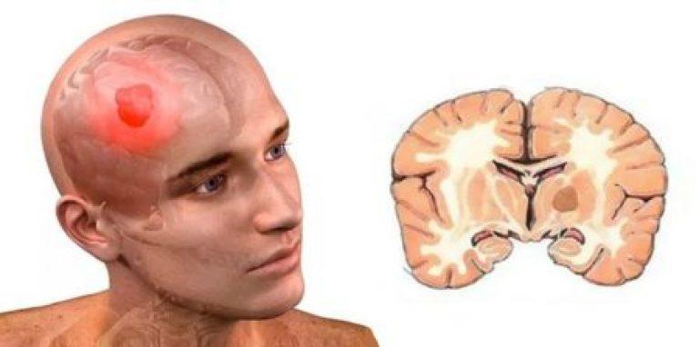 может претендовать от чего бывает отек мозга легким