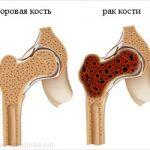 Рак костей
