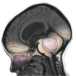 Медуллобластома головного мозга