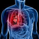 Прогноз при диагнозе рак легкого