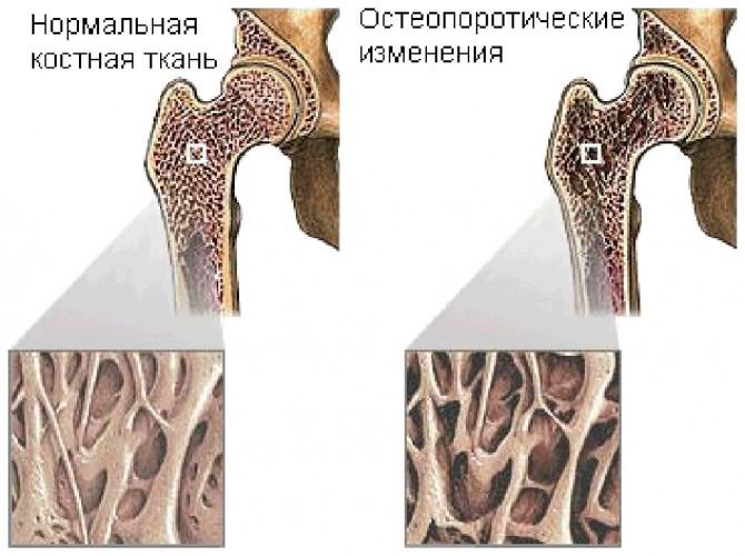 признаки рака кости