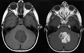снимок черепа